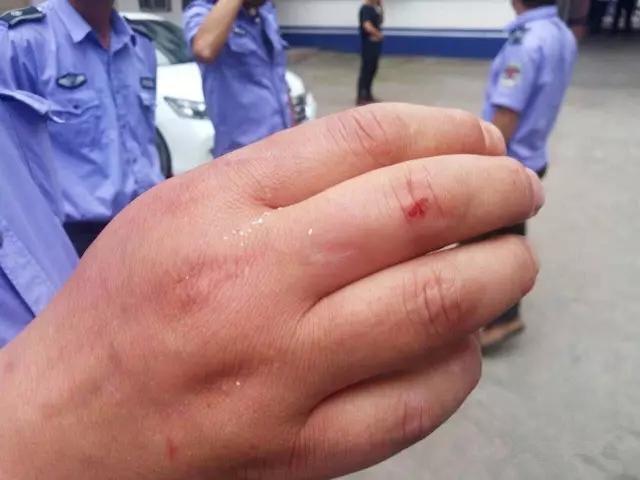 谩骂、侮辱、人身攻击,东海城管执法过程中遭到暴力抗法,好几位执法队员受伤!